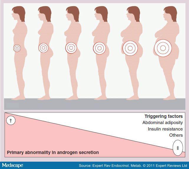 Źródło grafiki: www.medscape.org